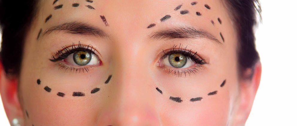 眼窩骨移動術の効果と失敗・修正のすべて!