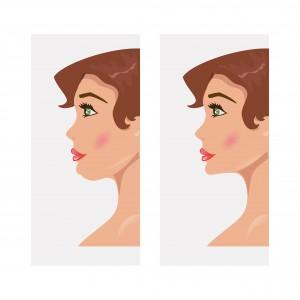 あご短縮(中抜き)の効果