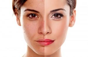 頬の脂肪注入のリスク