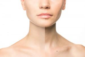 上下顎歯槽骨後退のリスク