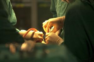 前頭洞骨切りの修正